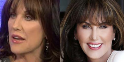 Robin McGraw Wrinkle Cream Results